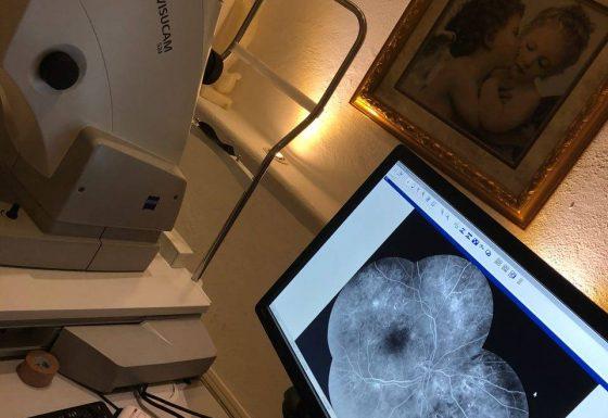 Cámara fluorangiografía